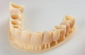 aplicacion-impresion-3d-resina-lpd-dentadura-inferior