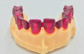 aplicacion-impresion-3d-resina-lpd-dientes-inferiores