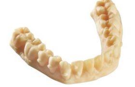 fabricacion-aditiva-resina-lpd-dentadura-superior