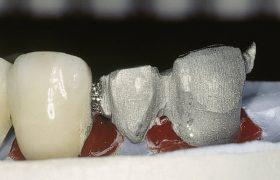soldadura-laser-dental-aplicacion-5 (1)